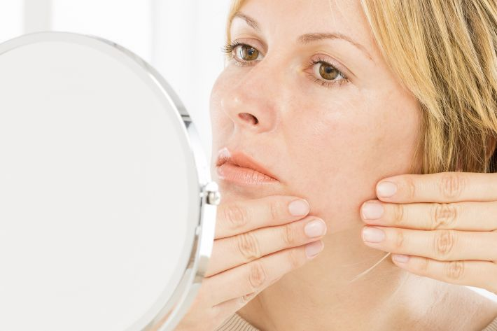 Menopause and acne