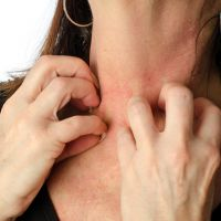 Itchy skin during menopause