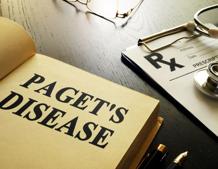 What is Paget's disease?