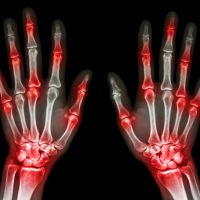An explanation of arthritis conditions