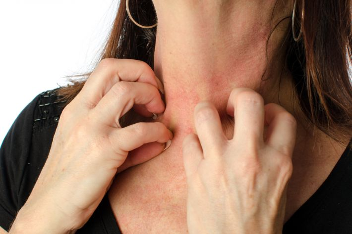 red blotches on face menopause